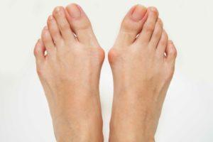 外反母趾・内反小趾の足