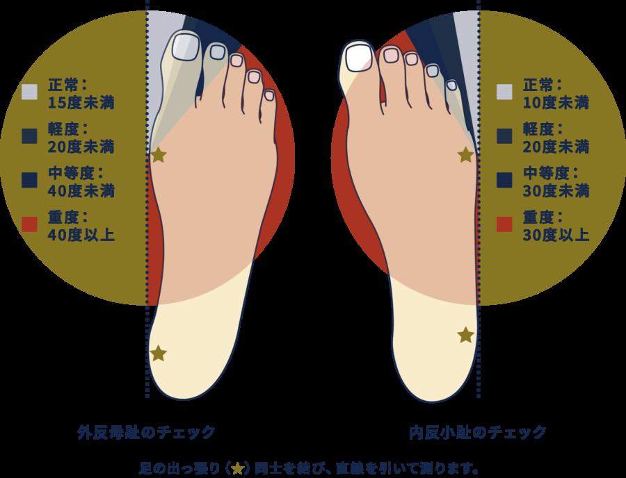 外反母趾・内反小趾のチェック方法