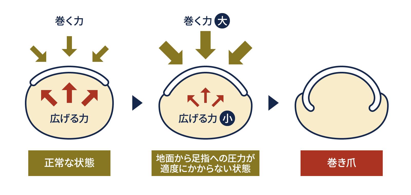 巻き爪の説明