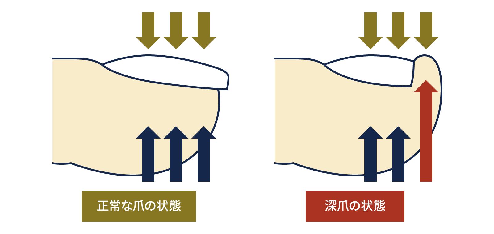 深爪と巻き爪の関係